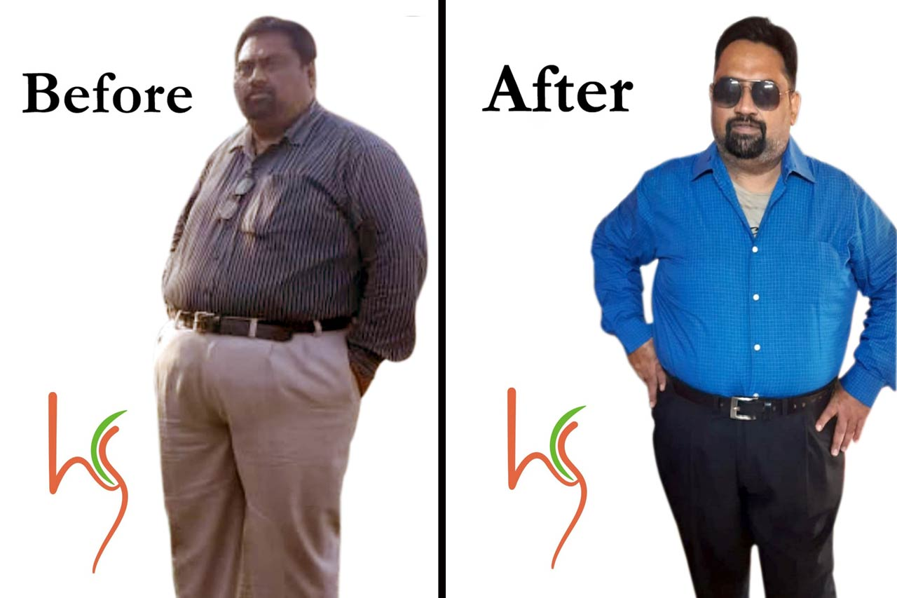 Mr Rajesh After Achieving 45 Kgs Weight Loss